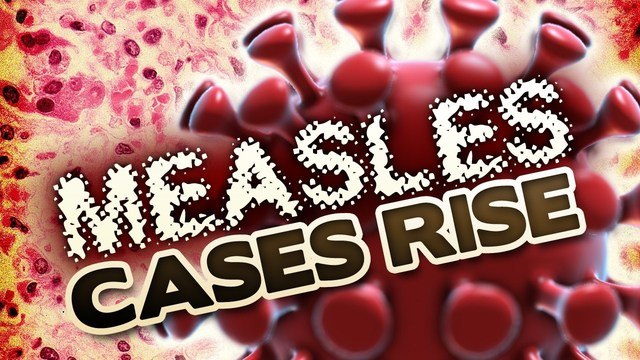 Number of cases in Measles Outbreak rises to 11