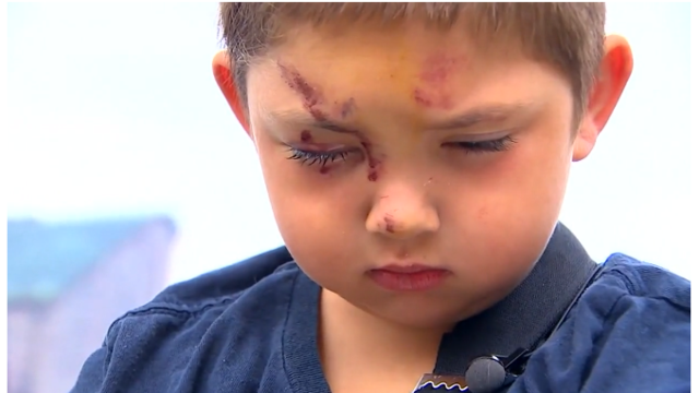 6-year-old WA boy suffers broken arm, cuts protecting friend from bullies