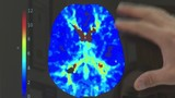 New Stroke Imaging Software Makes Detection Instantaneous